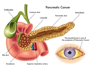 causes-and-symptoms-of-pancreatic-cancer